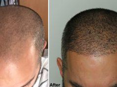 Saç Ekimi Öncesi Sonrası