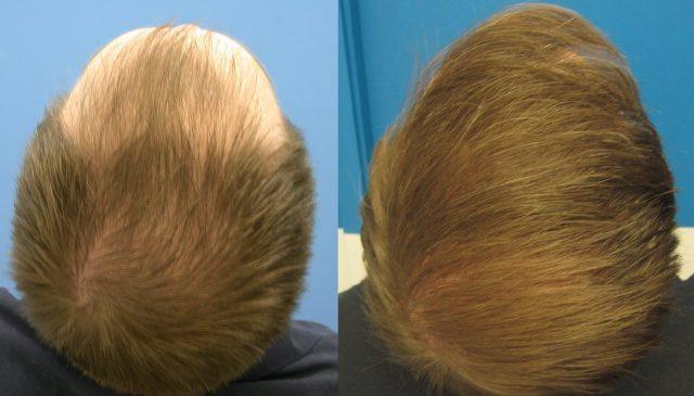Saç Ekimi Sonuçları