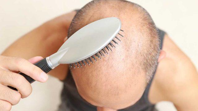 3000 Adet Saç Ekimi Ne Kadar ?