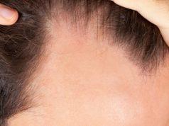 B12 Eksikliği Saç Dökülmesi Yapar Mı ?