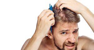 Erkeklerde Neden Saç Dökülmesi Olur ?