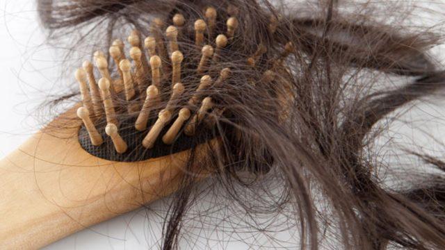 Kadınlarda Aşırı Saç Dökülmesi Neden Olur ?