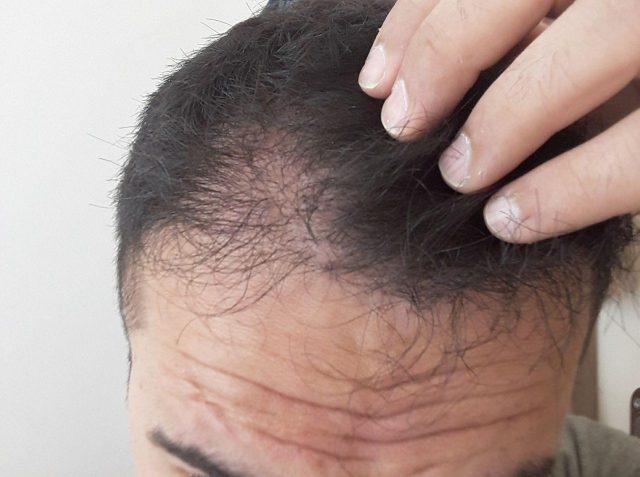 PRP Destekli Saç Ekimi Nedir ?