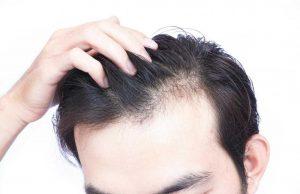 Saç Ekimi Ne Kadara Mal Olur ?