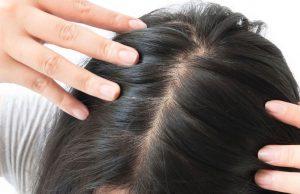Saç Ekimi Ne Zaman Yapılır ?