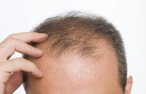 Saç Ekimi Sonrası Şok Dökülme Ne Kadar Sürer ?