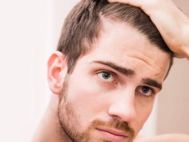 Saç Ekimi Sonrası Ekilen Saçlar Dökülür Mü ?