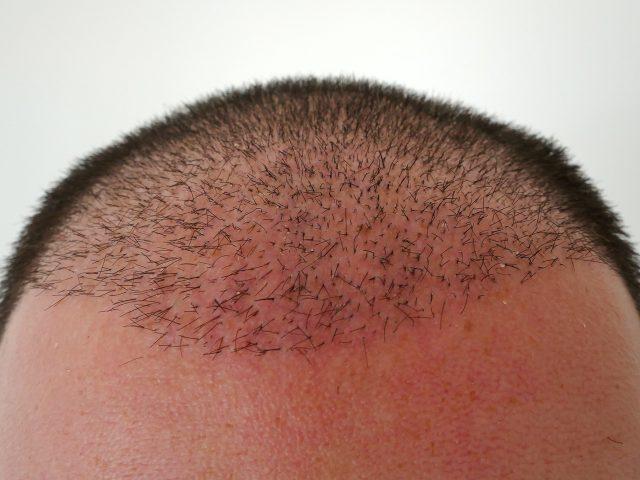 Saç Ekimi Sonrası Yıkama Kaç Gün Sürer ?
